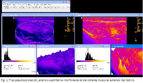 Ecografía neuromuscular, herramienta de diagnóstico para la ELA